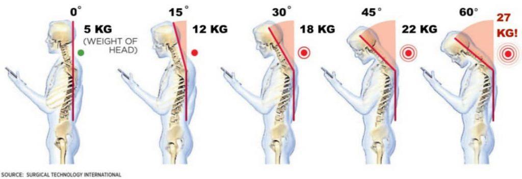 Damage-to-the-cervical-spine